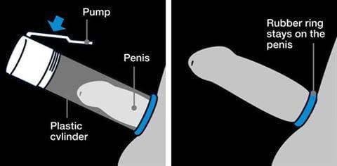 Penis Pump Ring Usage Illustration